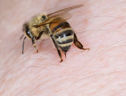How to Care for a Bee Sting